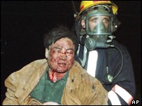 Casualty is led away after Chinese embassy attack, Belgrade, May 1999