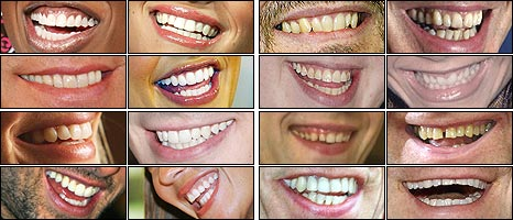American (L) and British (R) smiles: From top left, by row, Missy Elliot, Jessica Simpson, Ricky Gervais, Tony Blair, John Travolta, Sarah Michelle Gellar, Matt Lucas, Victoria Beckham, Kate Bosworth, Brandon Routh, David Walliams, Elton John, Tom Cruise, Megan Gale, Mick Jagger and Robbie Williams