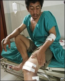 An injured indigenous Peruvian in hospital in Bagua Grande, 6 June