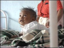 Child in Guatemalan hospital in Jalapa