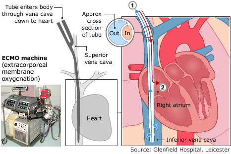 Graphic shows how the ECMO works