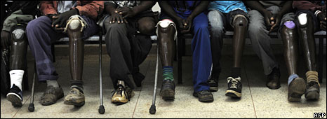 People with artificial limbs