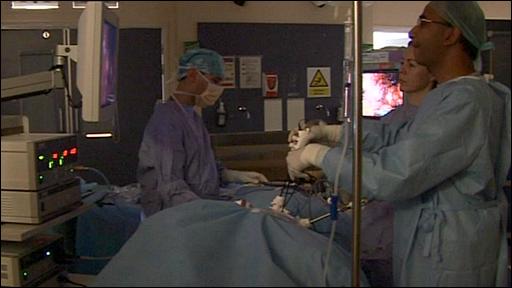 Keyhole kidney removal