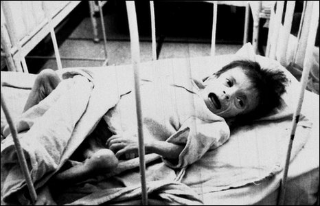 Child in Romanian Aids ward in 1990