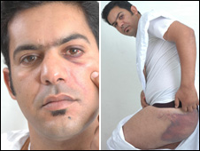 Rachid Sghir shows bruises to his face and buttocks
