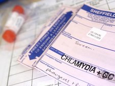 how to help a friend with chlamydia