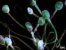 Male sperm