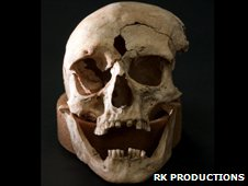 Skull found at Towton