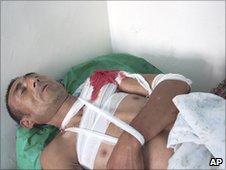 A shot ethnic Uzbek is treated at a hospital near Osh. Photo: 12 June 2010