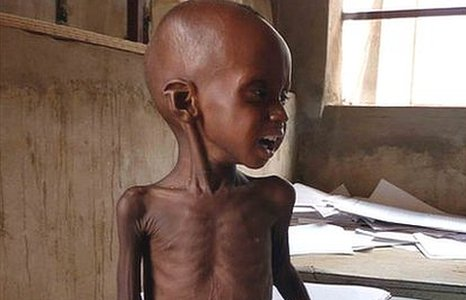 An emaciated boy sits on scales in a health centre in Niger
