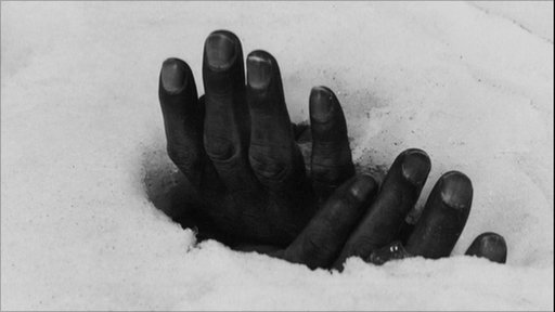 The hands of a victim of the war