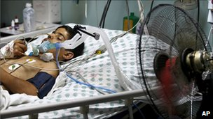 A Palestinian boy in ICU at Shifa hospital, Gaza City, 20 June