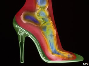 X-ray of woman wearing high heels