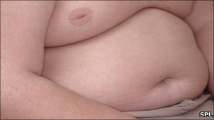 Flabby torso of an obese boy