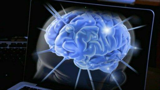 Brain image on computer screen