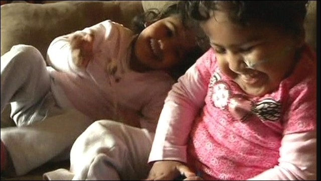 Formerly-conjoined twins Trishna and Krishna