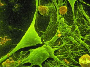 Nerve cells, SPL