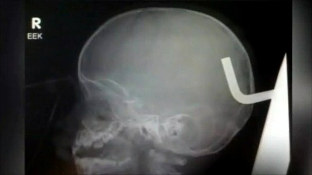X-ray showing metal hook in Jessiah Jackson's skull