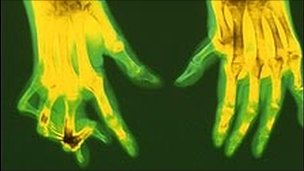 An X-ray of hands affected by rheumatoid arthritis