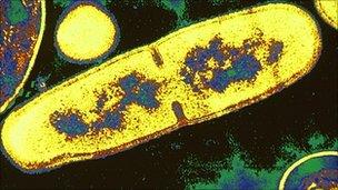 B licheniformis bacterium