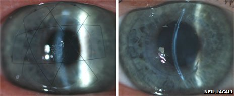 Images of the biosynthetic cornea post surgery after 24 hours and 2 years.