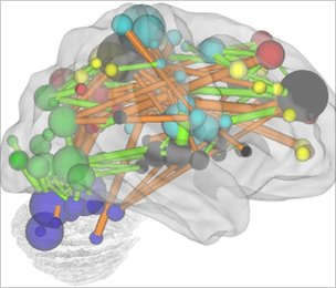 In this diagram, functional connections between brain regions that grow stronger with age are shown in orange, those that weaken are in blue