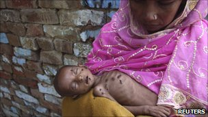 Naushad, 18 months old and suffering from severe malnutrition, lies on his mother&#039;s lap Kalonda village in the northern Indian state of Uttar Pradesh 6 September 2010.
