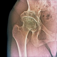 A hip with osteoarthritis