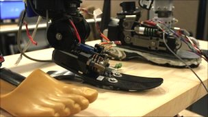 The Ankle-Foot Prosthesis