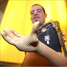 Christian Kandlbauer and his mind-controlled robotic arm