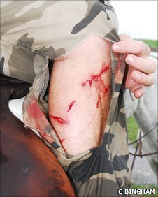 Steve Backshall's injuries (c) Charlie Bingham