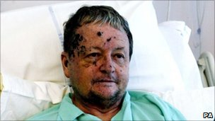 Prof Tulloch, pictured in hospital a few days after the bombings in 2005