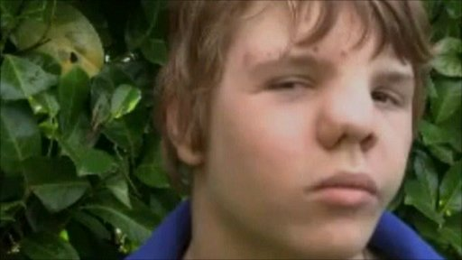 Fourteen-year-old, Lucas Hayward, was born with a condition called frontal-nasal craniofacial dysplasia