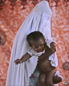 Mother holds a child with skin disease in Kot Addu village
