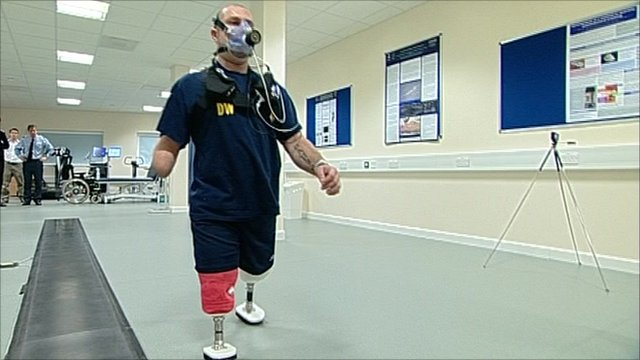 Leg amputee walking on prosthetic legs