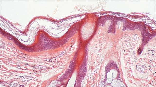 Micrograph of healthy skin