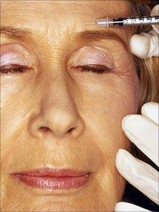 Woman have botox