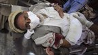 A man injured in the attack receives treatment at a hospital in Peshawar