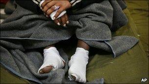 Injured Eritrean asylum-seeker