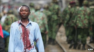 An injured Kikuyu man in Nairobi, Kenya (Jan 2008)