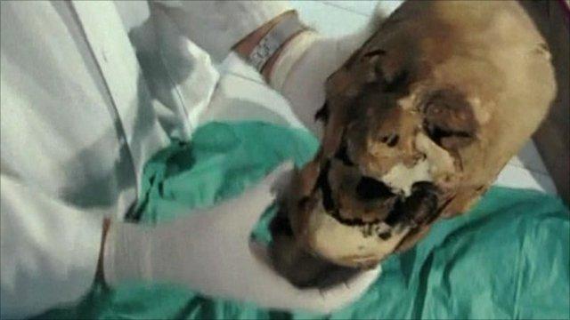 Embalmed head