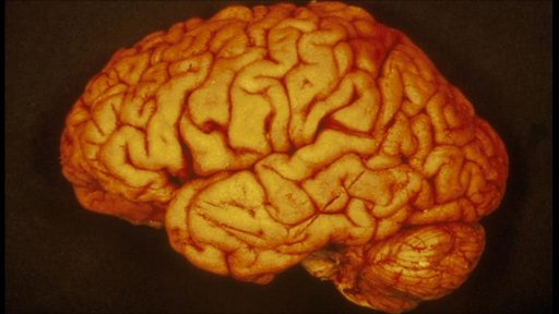 Human brain