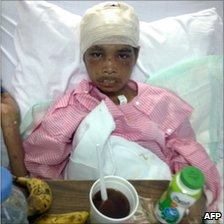 Indonesian maid Sumiati Binti Salan Mustapa, 23, is shown recovering in hospital in Medina in an image released by Indonesian website detik.com on 27 November 2010