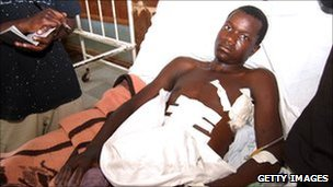 Wounded miner Vincent Chenjela (file picture, Oct 2010)
