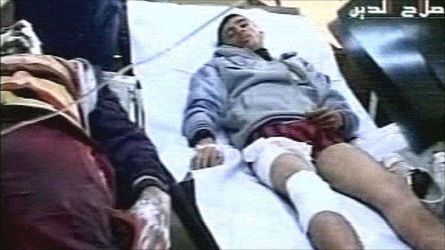 Injured men in hospital