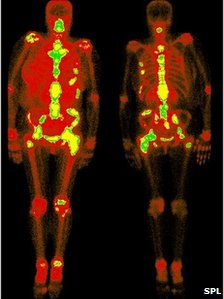 Secondary cancers in the bones