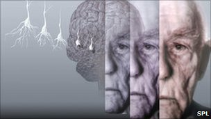 Conceptual computer artwork showing the brain of an elderly man affected by Alzheimer's disease