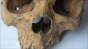 Skull of an African man discovered in Warwickshire.