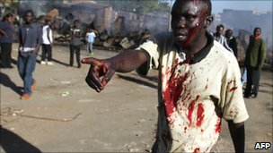 A resident of the Mathare slum in Nairobi, Kenya, bleeds from cut to his head after he was attacked by supporters of presidential candidate Raila Odinga, December 2007