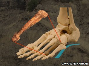 Bone position in foot (Carol Ward and Elizabeth Harman)